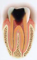 虫歯の段階C3