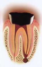虫歯の段階C4