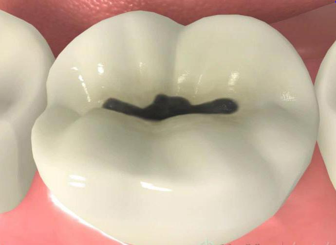 黒く虫歯になった部分を削り、その部分の型をとり、部分的な金属 (インレー)を装着。
