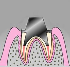 根の治療完了後は、歯冠部を回復させるために土台を立てます。