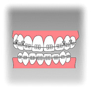 元の歯を生かす矯正治療、セラミックをかぶせる歯冠修復があります