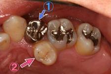 転位した歯を生かした矯正