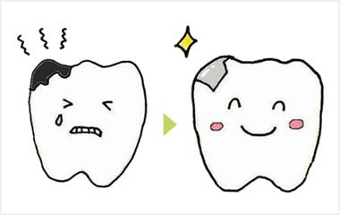 虫歯、歯周病、入れ歯の治療の多くが保険内で治療できます