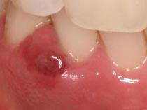 歯茎 腫れる