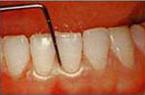 歯肉の状態