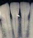 レントゲン画像